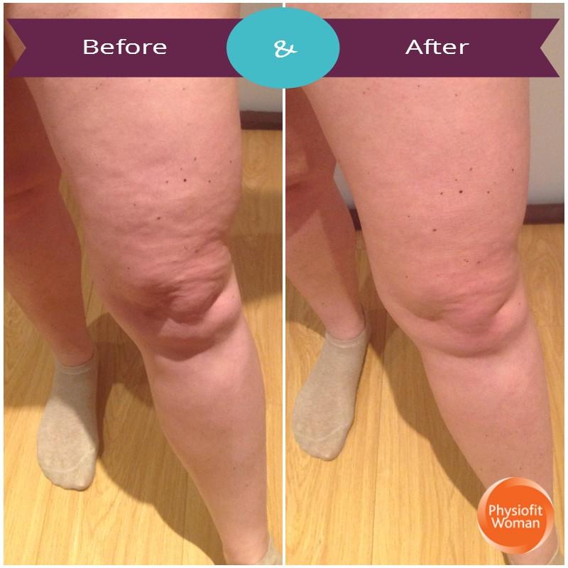 Cellulite knee