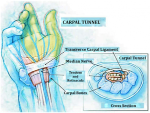 1 - Carpal tunnel structure and section